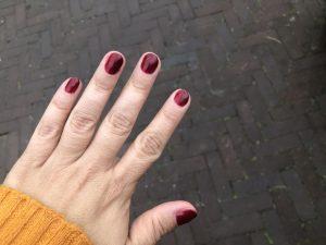 diary_mamablogger_singelloop_persoonlijk_nagels_9-jaar prik_